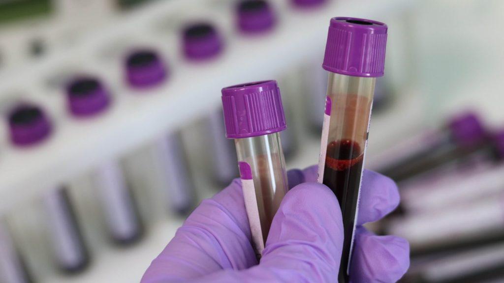 кръвен тест за бременност