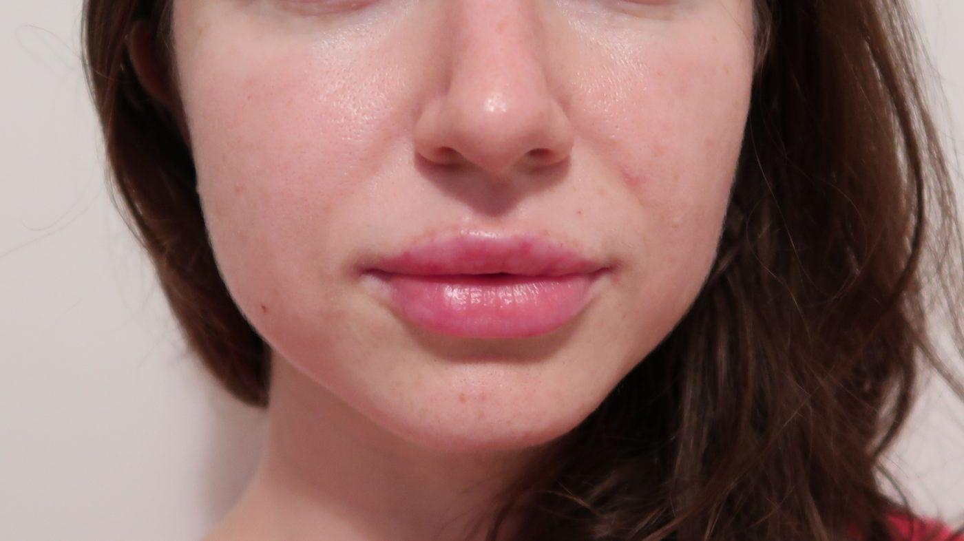 филър в устните